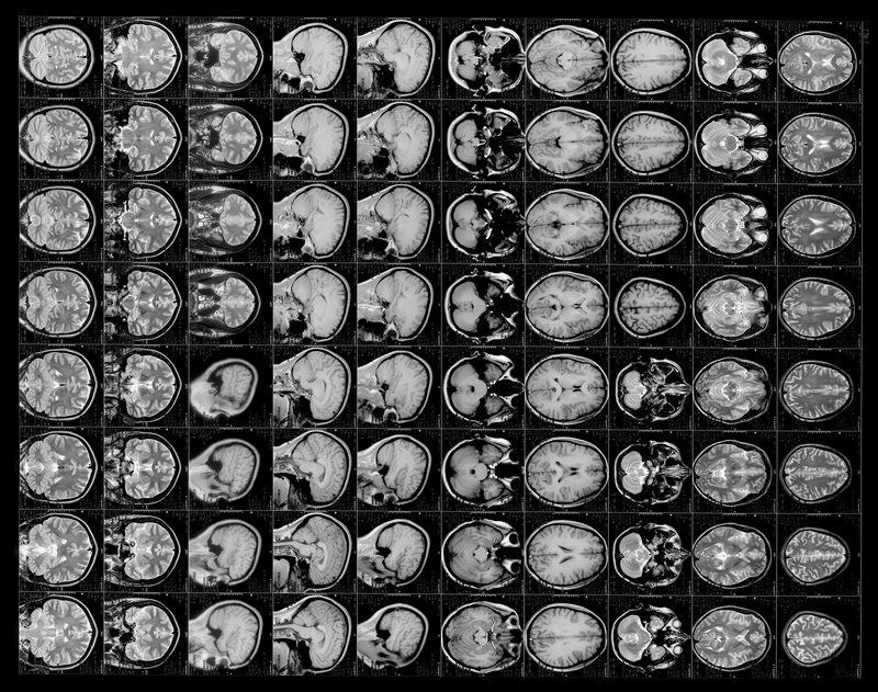 как отсканировать рентгеновские снимки